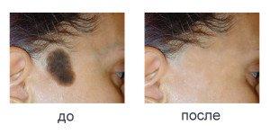 Как удалить пигментные пятна на коже 2